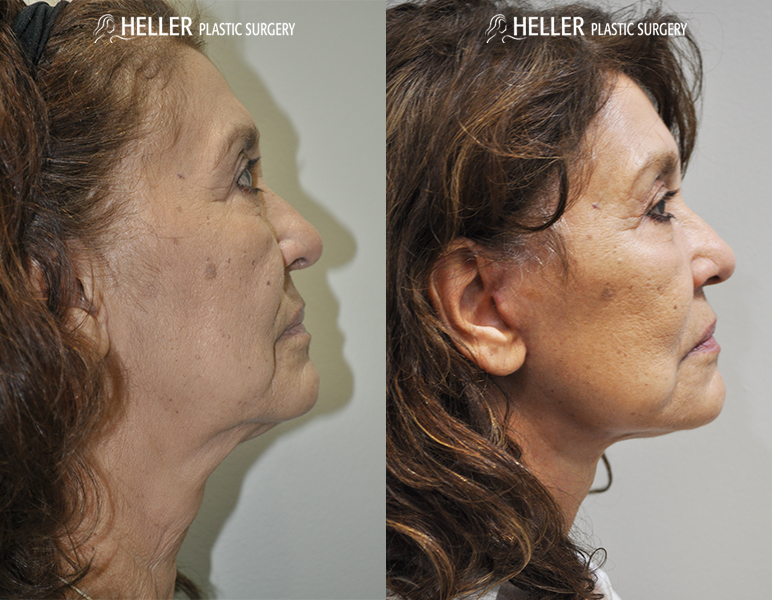 FaceliftRight