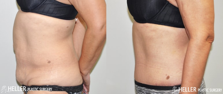 Heller-Before-After-Tummy-LeftV2