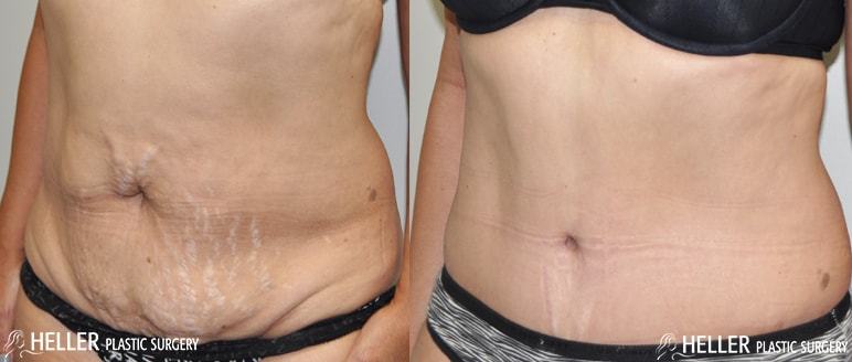 Heller-Before-After-Tummy-Side1