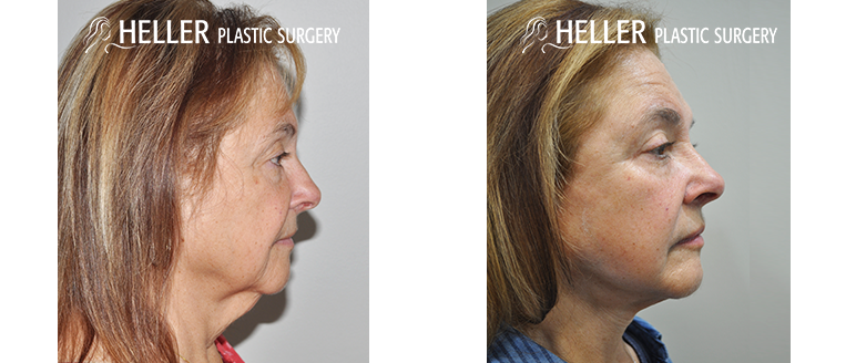 Heller Plastic Surgery Facelift right side