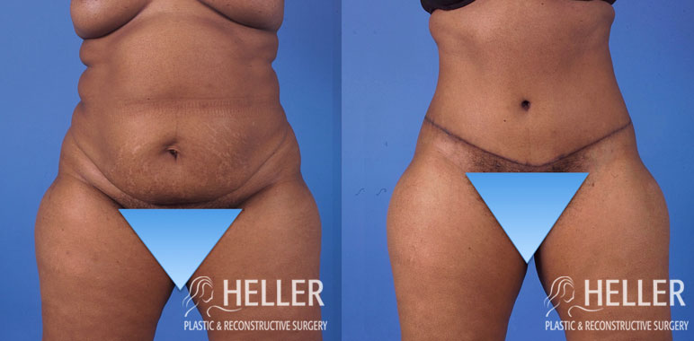 Abdominoplasty 1-6