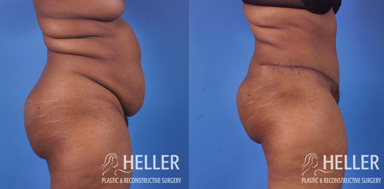 Abdominoplasty 1-7