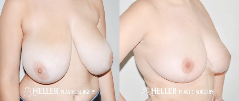 Breast Reduction 1-2