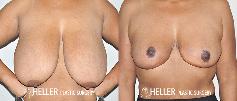 Breast Reduction 3-1.5