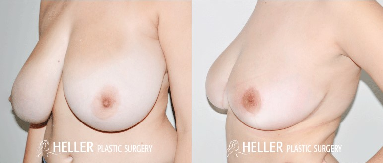 Breast Reduction 3-2