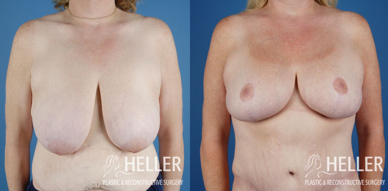 breast-reduction-02-1