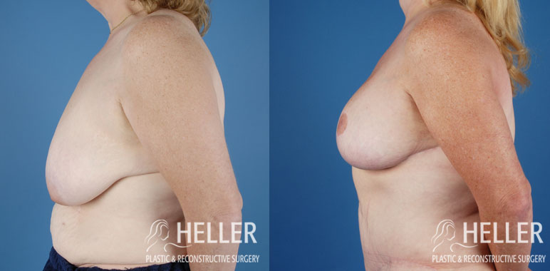 breast-reduction-02-2