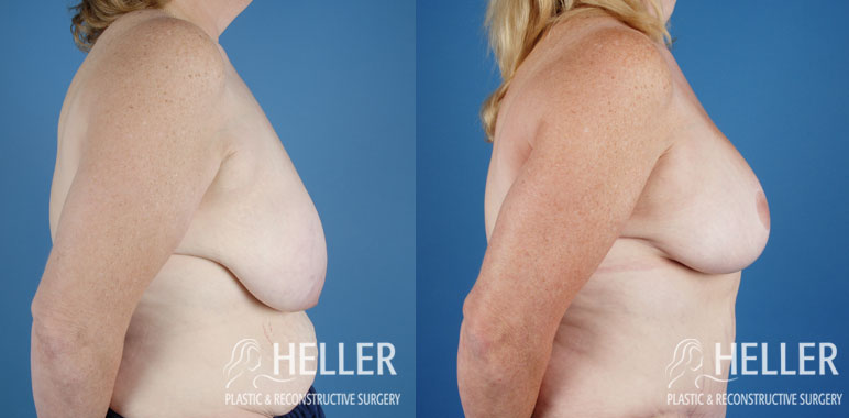 breast-reduction-02-3