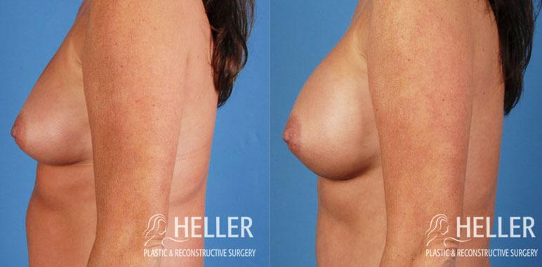 Breast Augmentation 2-1