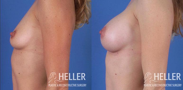 Breast Augmentation 3-1
