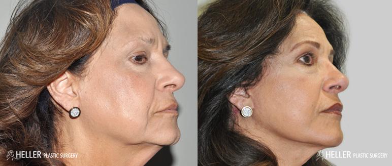 face-lift-oblique-side