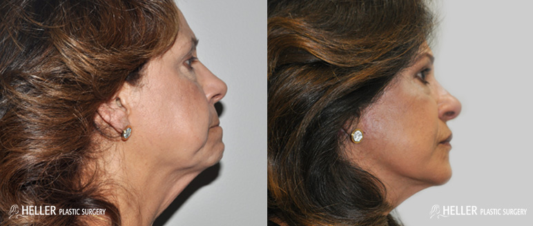 face-lift-side