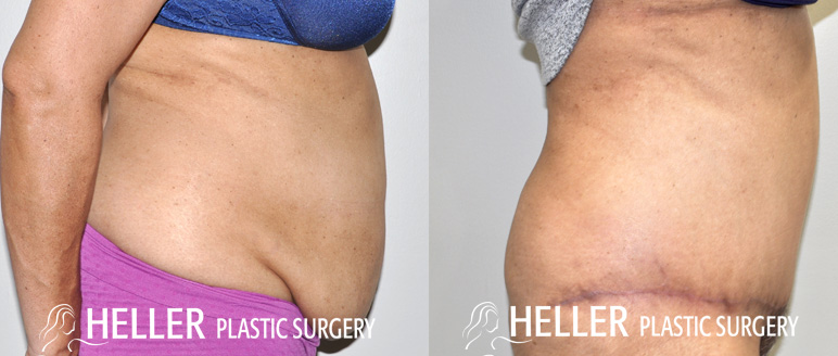 Tummy Tuck 3 Months Post Angle