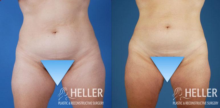 Liposuction 2-1