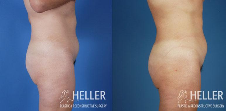 Liposuction 2-2