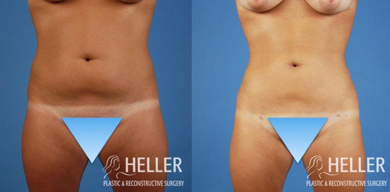 Liposuction 3-1