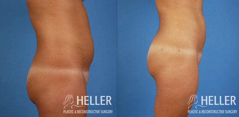 Liposuction 3-2