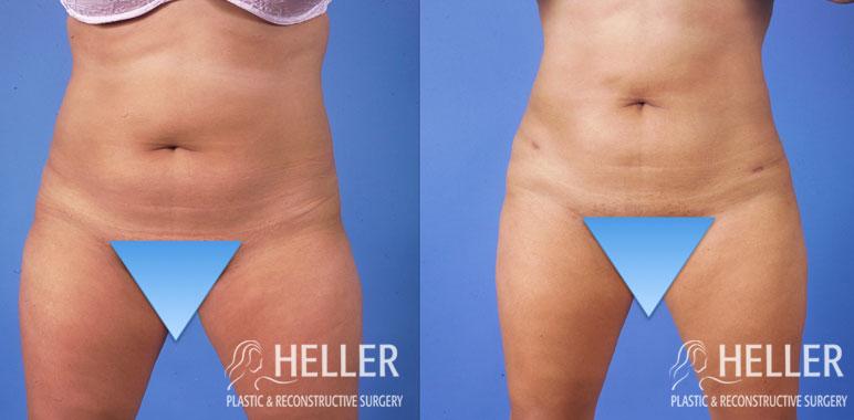 Liposuction 4-1