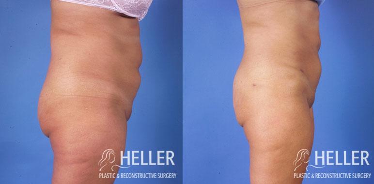 Liposuction 4-2