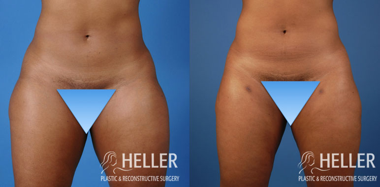 Liposuction 5-1