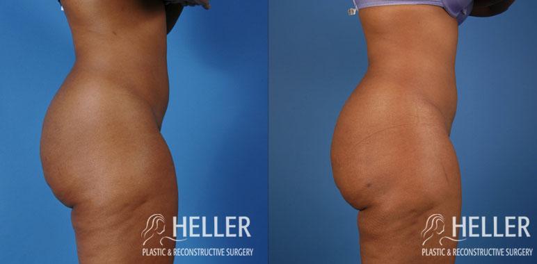 Liposuction 5-2