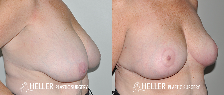 Breast Revision 3-3
