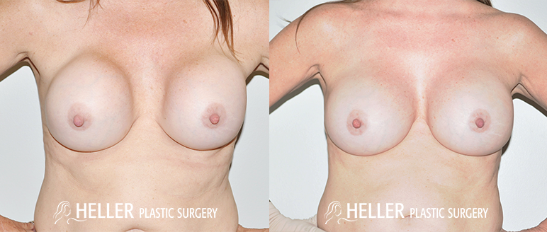 Breast Revision 1