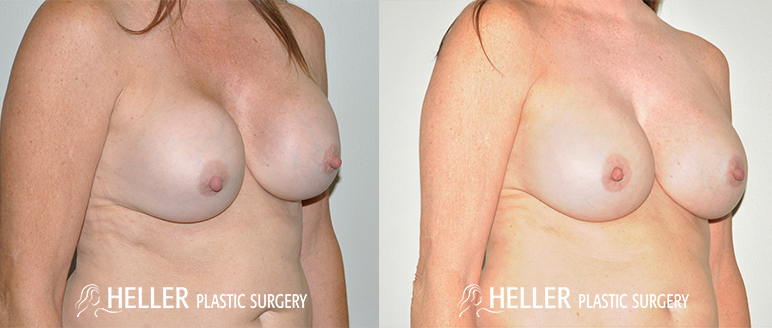 Breast Revision 2