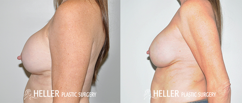 Breast Revision 3