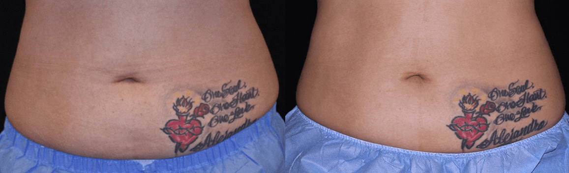 Tummy Surgery - Before and After 2