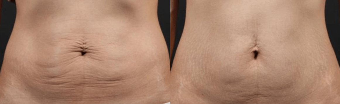 Tummy Surgery - Before and After 7