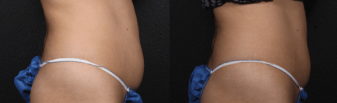 Tummy Surgery - Before and After 8
