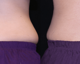 Tummy Surgery - Before and After 3