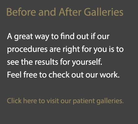 Before and After Galleries