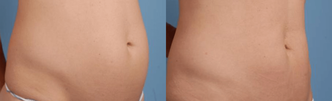 Tummy Surgery - Before and After 6