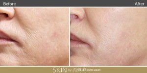 DermaSweep Before and After 2