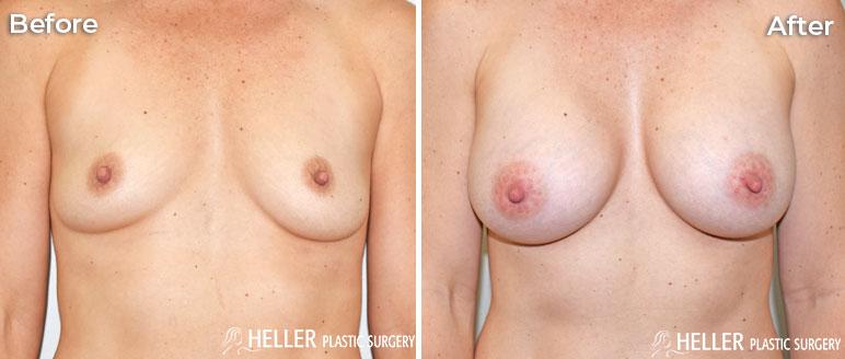Breast Augmentation Case 19