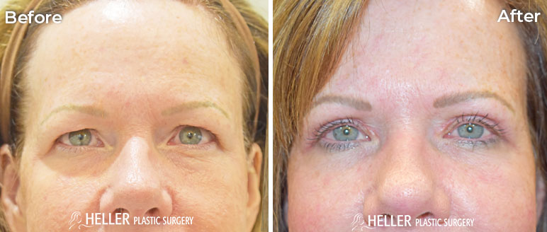 Upper Blepharoplasty Case 16