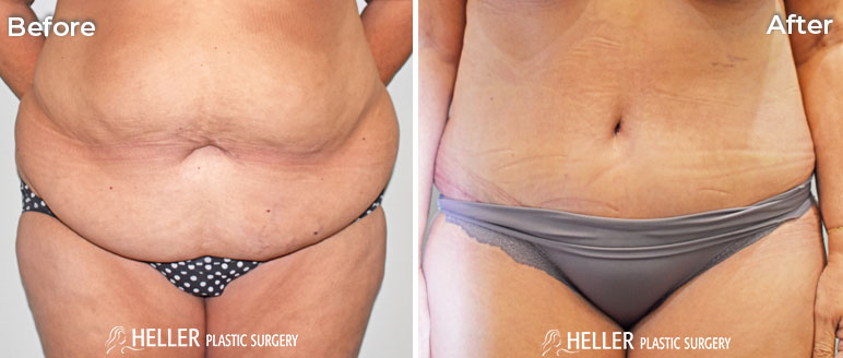 Tummy Tuck Front Case 13