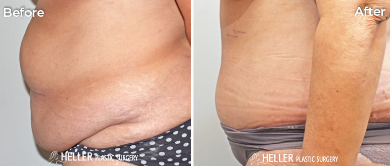 Tummy Tuck Left Case 13