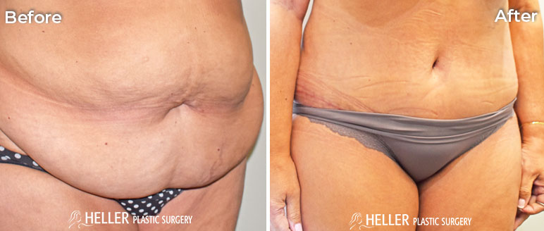 Tummy Tuck Right Obli Case 13