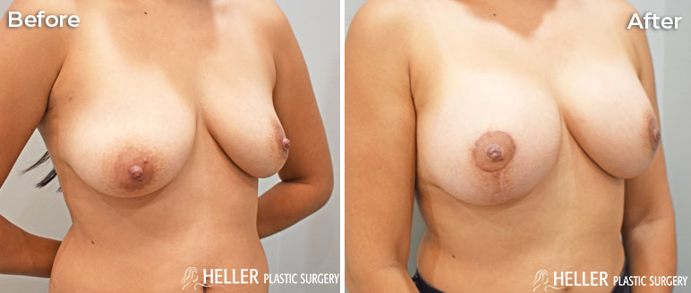 Breast Augmentation with Lift Case 2