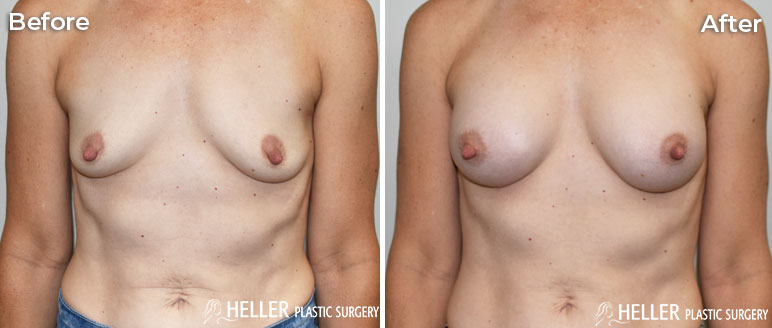 Breast Augmentation Front Case 20