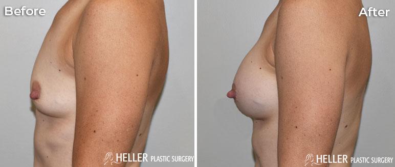 Breast Augmentation Left Case 20