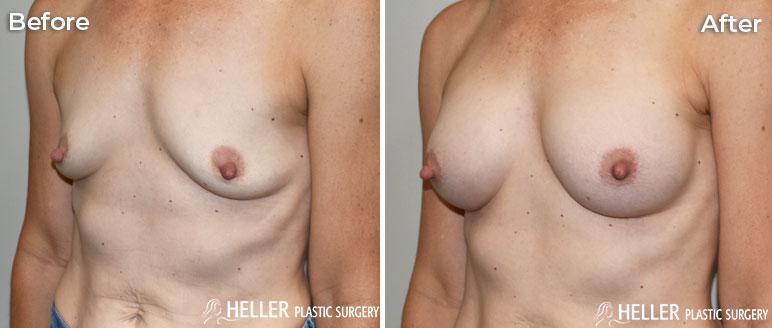 Breast Augmentation Left OBL Case 20