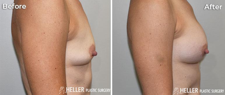 Breast Augmentation Right Case 20