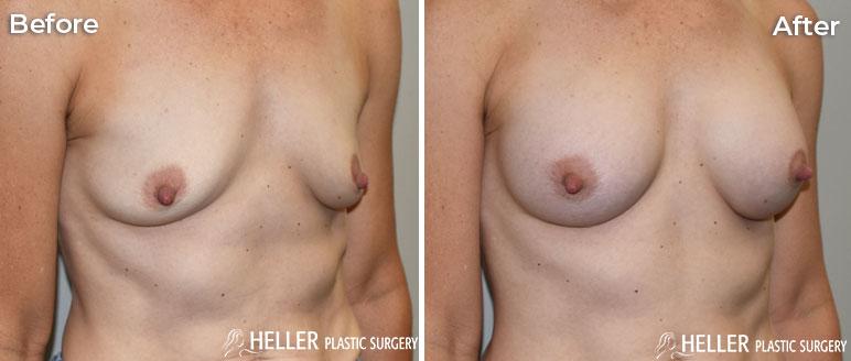 Breast Augmentation Right OBL Case 20