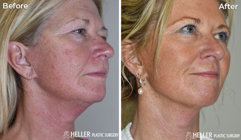 CO2 Face and Neck Lift