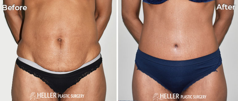 Tummy Tuck Front Case 14