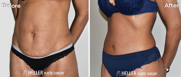 Tummy Tuck Left Oblique Case 14
